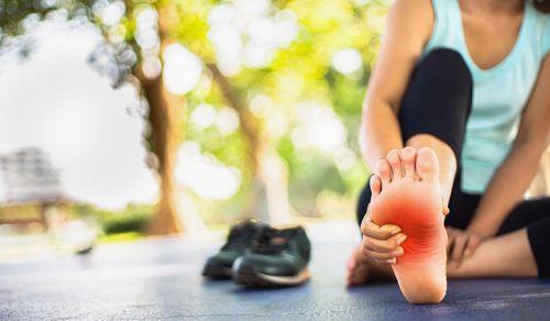 Fascite plantar – uma das principais causas de dores nos pés