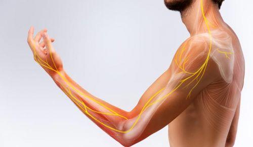 Lesão de nervos periféricos da mão e membros.