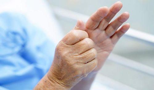 Rizartrose – Artrose na raiz do dedo polegar (da mão)