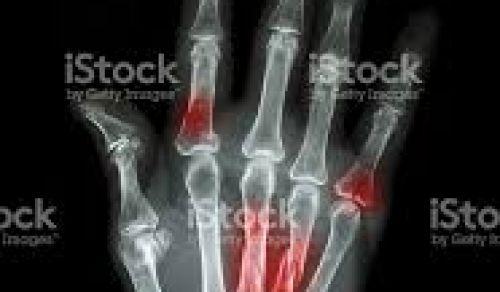 Fraturas na mão e membro superior